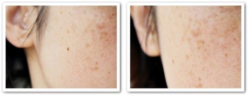 頬のしみ・そばかすをレーザーで消すために皮膚科に行き、治療や値段について聞いてきました