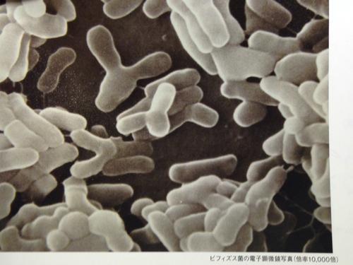 ビフィズス菌の電子顕微鏡写真(倍率10,000倍)