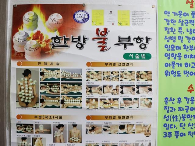韓国伝統カッピング