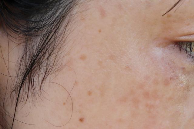 頬のしみ・そばかすレーザー治療の値段と効果